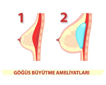göğüs büyütme ameliyatları
